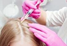 Jak wygląda mezoterapia igłowa skóry głowy i kiedy warto zdecydować się na zabieg?